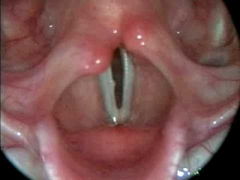 This is what your vocal cords look like