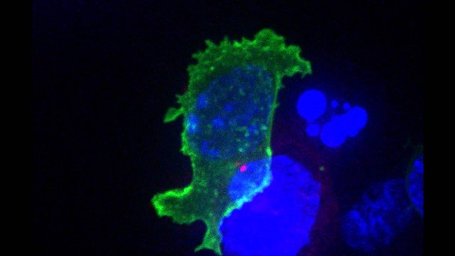 Killer T cell attacking cancer