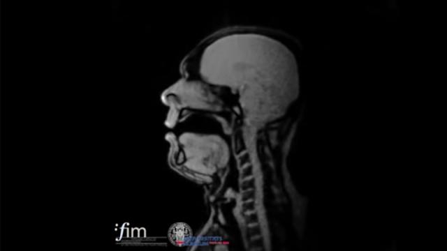 Opera singers sing during real-time MRI scans