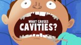 What causes cavities?